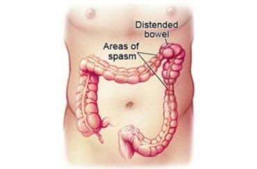 IBS spasm